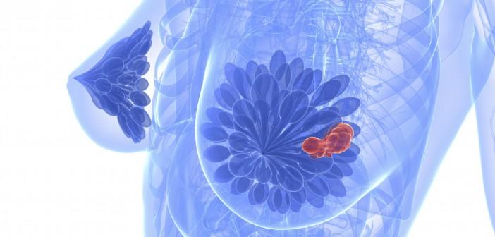 Agaricus a rakovina prsu