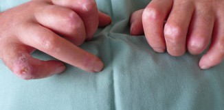 Cordyceps a systémový lupus